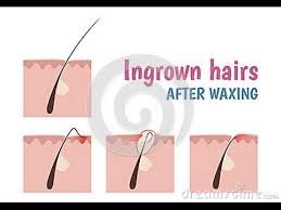 essential oil for ingrown hair tea tree oil for ingrown hairs youtube