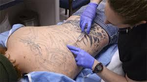 winston salem man undergoes laser treatment to remove tattoo