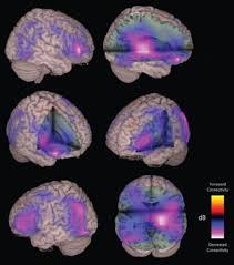 Brain Mapping Meg Imaging Can Predict Long Term Brain Damage