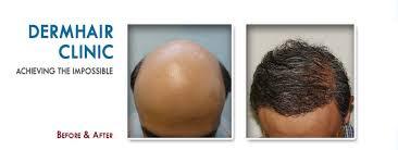 hair transplant america advanced fue hair restoration clinic hair transplant hair