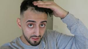 brooklyn hairline barber f cks up my hairline like really bad youtube