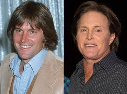 what is happening to bruce jenner bruce jenner from better or worse celebs who have had plastic surgery