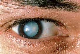 Cataract Leads To Blindness Due To Diabetic Retinopathy And Pictures Of Other Diabetes Related Eye