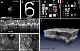 osa combined reflectance confocal microscopy optical coherence