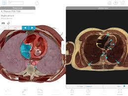 Human Anatomy Atlas The Visible Body Blog Technology In Anatomy Education