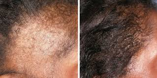 hair transplant for black women women s hair transplant before and after gallery