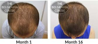 thinning hair in women on top of head general hair thinning regrow hair