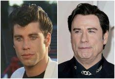robert redford hairpiece john travolta hair transpant celebrity hair transplants