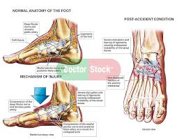 Foot Anatomy Nerves Crush Injury Of The Foot Doctor Stock