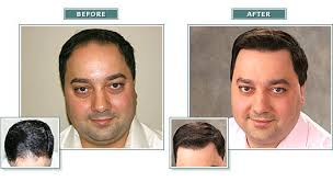 hair transplant costs in the philippines hair transplant for sale or swap catmon cebu philippines 13705