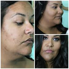 how to cover cystic acne with makeup makeup vidalondon