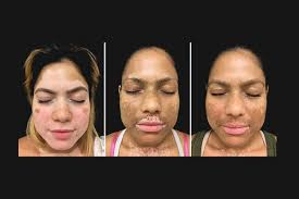 uvb light therapy for vitiligo xeljanz light therapy combination could be breakthrough vitiligo