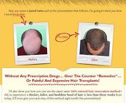 download hair loss ebook jared gates rebuild hair program review ebook faq and pdf download