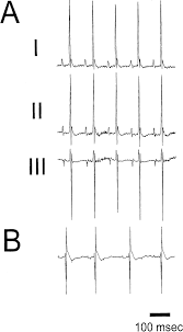 reentry and fibrillation in the mouse heart circulation research