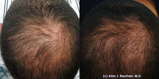 Hair Loss Cure For Women Hairstyle Prp Therapy Hair Loss Stem Cell Hair Restoration