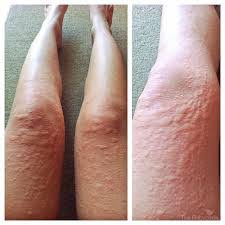 Obat Gatal obat gatal herbal obat gatal alergi bentol kulit