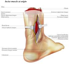 Fibular Avulsion Ankle Posterolateral Approach Approaches Orthobullets Com