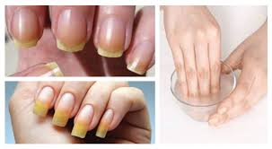 an effective recipe for nail whitening in just 10 minutes u2013 what
