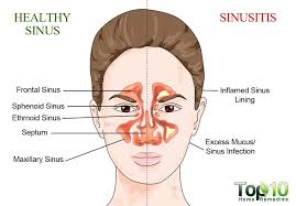 can sinus infection cause dizziness light headed symptoms that indicate a sinus infection not a cold top 10 home