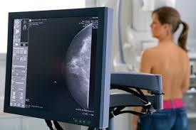 one in three women may receive unnecessary mammograms study says