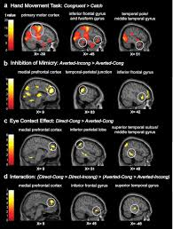 the control of mimicry by eye contact is mediated by medial