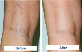 we eliminate unsightly varicose and spider veins at dermmedica kelowna