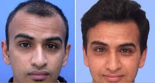 hair plugs for men the reigning stone towards hair restoration hair transplant