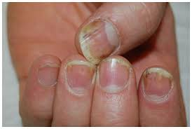 full text optimal management of nail disease in patients with