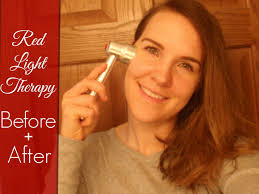 light therapy for acne scars baby quasar red light therapy before after review youtube