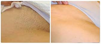 brazilian hair removal pics laser hair removal bikini line before and after pictures or