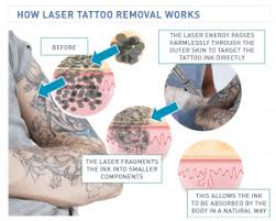 100 tattoo removal tips natural tattoo removal tips for