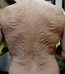 full back scarification for women jpg 600 685 scars