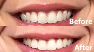 crest 3d white whitestrips with light review 3d pearly whites whitening strips