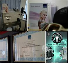 inkden tattoo laser removal clinic u2013 blackpool laser tattoo