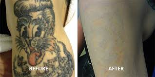 laser tattoo removal center of boston u0027s north end