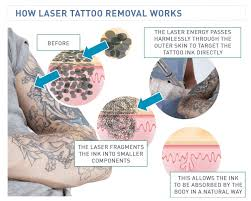 the science behind laser tattoo removal how it works tattoodo