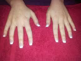 nail repair from acrylic nails