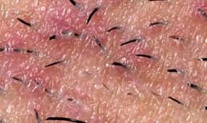 Rug Burn Infection Symptoms Vaginal Blisters Around Lips Itchy Fluid Filled
