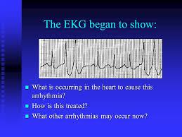 acls advanced cardiac support rc 275 defibrillation external