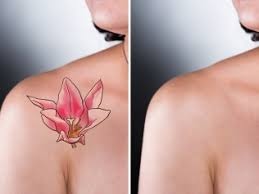 laser tattoo removal richmond va east coast laser tattoo removal