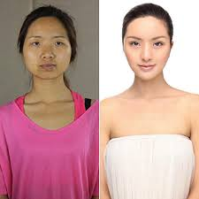 Asian Family Plastic Surgery Meme - cosmetic surgery before and after photos from korea popsugar