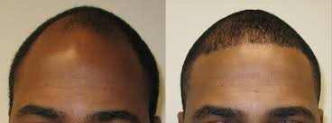 african american hair transplant african american hair transplant patients page dr brett bolton