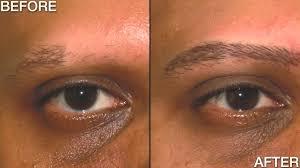 New Eyebrow Tattoo Technique Alopecia Treatment Youtube