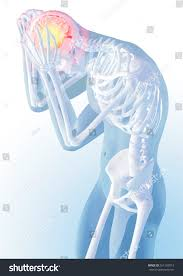 concept head pain transparency skeleton body stock illustration