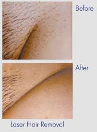 brazilian laser hair removal pictures before and after laser removal jpg