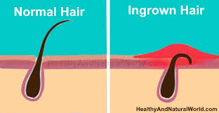 how to remove engrown hair onunderwear line how to naturally get rid of ingrown pubic hair and bumps