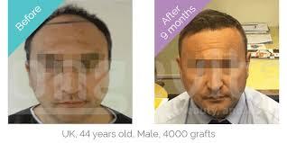 dhi hair transplant reviews hair transplant turkey the no 1 choice for hair transplants in turkey