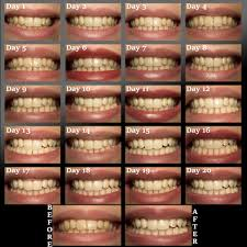 teeth whitening at home with 3d crest whitestrips