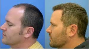 Best Hair Loss Treatments Why Go For Best Hair Loss Treatment In Chandigarh