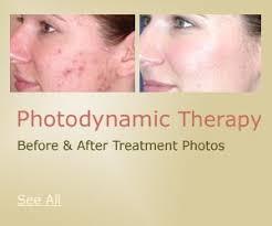 led light skin cancer photodynamic therapy nyc new york doris day md